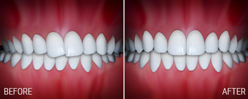 joseph laponzina orthodontics bel air md new patients crossbite after