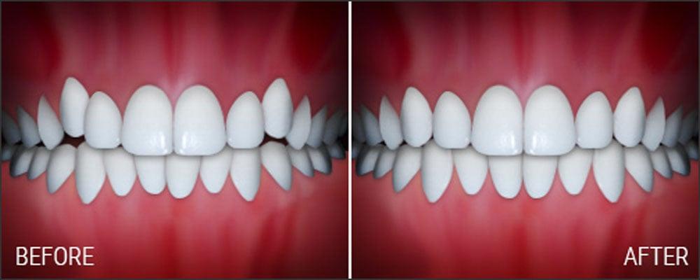 joseph laponzina orthodontics bel air md new patients crowding after