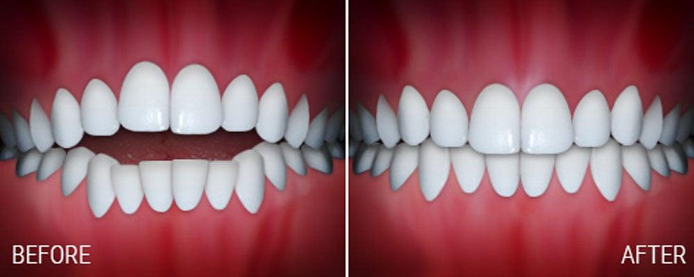 joseph laponzina orthodontics bel air md new patients openbite after