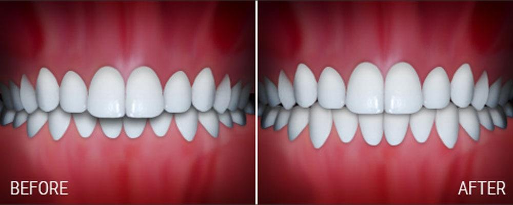 joseph laponzina orthodontics bel air md new patients overbite after
