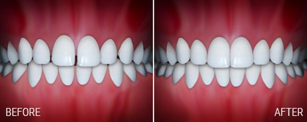 joseph laponzina orthodontics bel air md new patients spacing after