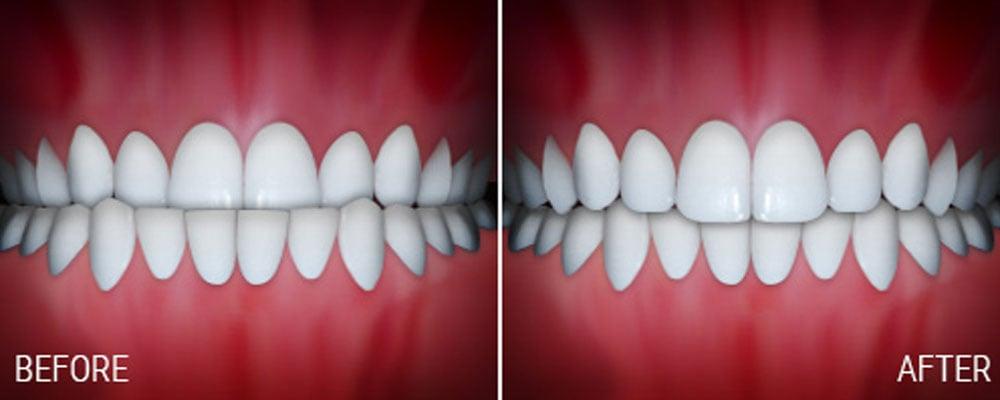 joseph laponzina orthodontics bel air md new patients underbite after